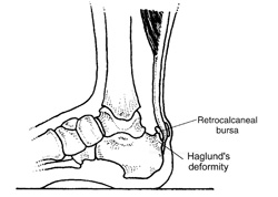 Figure 2: Haglund's deformity refers to a bony prominence on the upper heel. A retroachilles bursitis often forms between the Haglund's and the Achilles tendon.