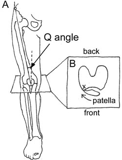 Figure 1A) The Q angle, or quadricep angle, is the angle formed between the upper pelvis, central kneecap and the attachment point of the patella tendon on the tibia. Because a large angle has been theorized to cause knee pain, surgeons occasionally alter this angle by moving its attachment. Figure 1B) A laterally deviated patella tilts outwardly and is subjected to greater pressure as the patella hits the lateral femoral condyle (X).