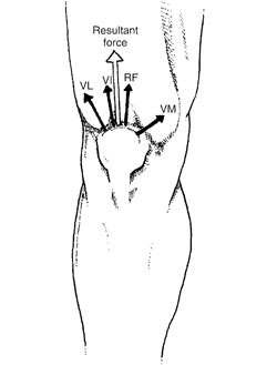 Figure 2) Because the quadriceps muscle has four heads (hence the name quadriceps), each section exerts a pull with a different line of drive. The vastus lateralis (VL) creates a powerful lateral pull, while the rectus femoris (RF) and vastus intermedius (VI) produce almost a straight pulling force. The lateral pull of the vastus lateralis must be resisted by the inward pull of the vastus medialis (VM). The lower portion of the vastus medialis is referred to as the vastus medialis obliquus or VMO.